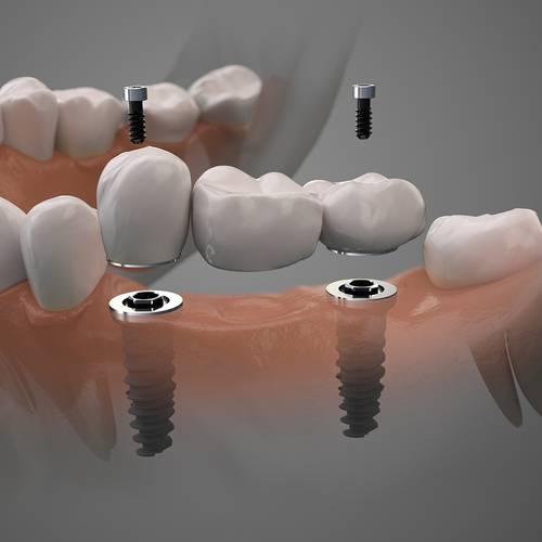 family dentistry alvin dental care alvin tx services dental implants image 1