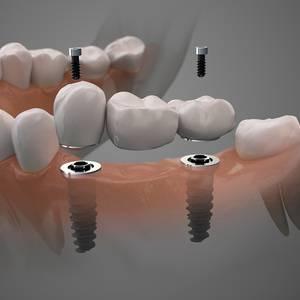 family dentistry alvin dental care alvin tx services dental implants image